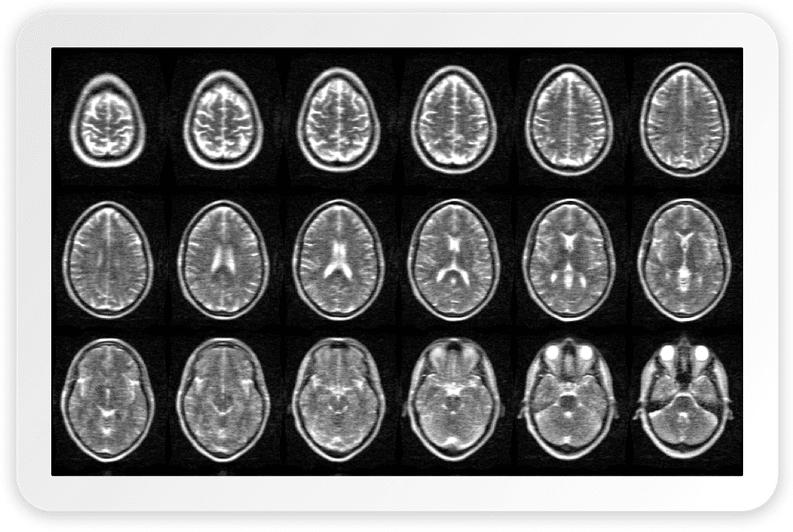 Portable MRI Scanner